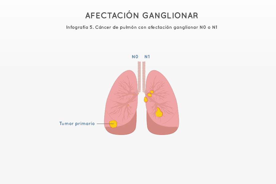 Infografía 5. Cáncer de pulmón con afectación ganglionar N0 o N1