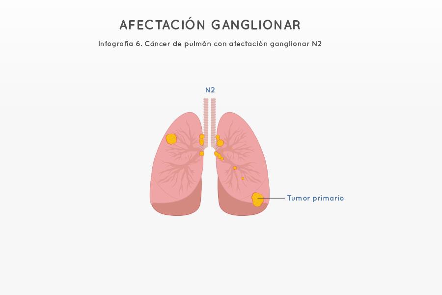 Infografía 6. Cáncer de pulmón con afectación ganglionar N2