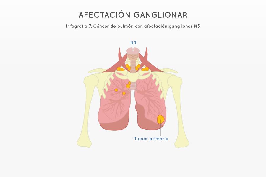 Infografía 7. Cáncer de pulmón con afectación ganglionar N3