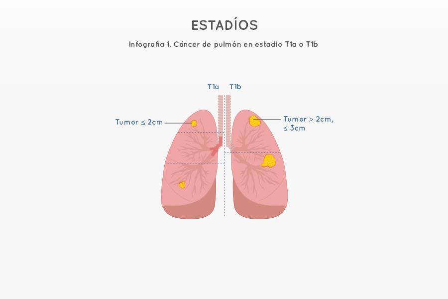 Infografía 1. Cáncer de pulmón en estadío T1a o T1b