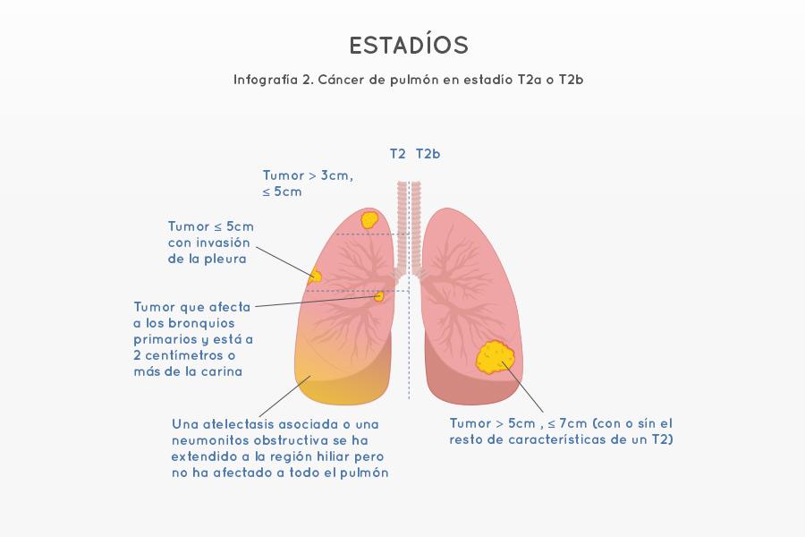 Infografía 2. Cáncer de pulmón en estadío T2a o T2b