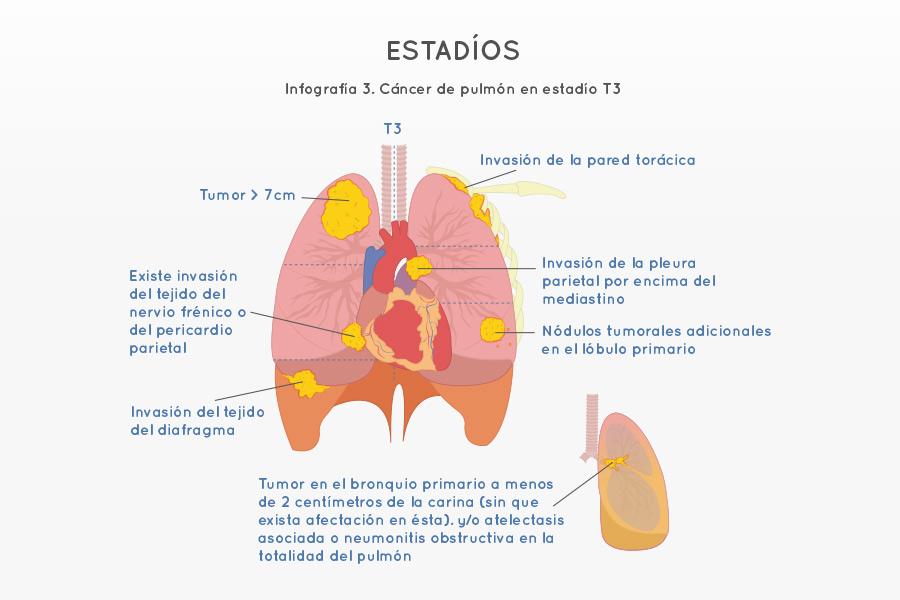 Infografía 3. Cáncer de pulmón en estadío T3
