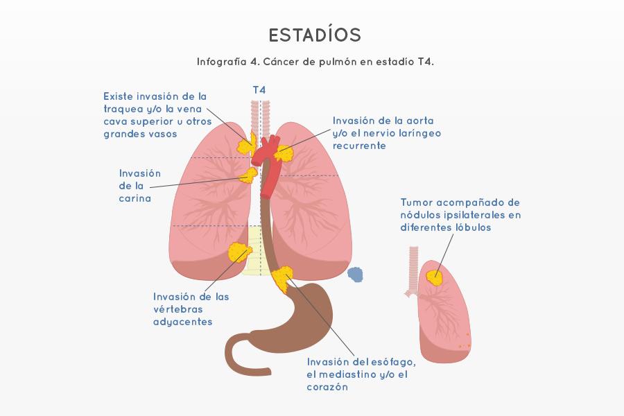 Infografía 4. Cáncer de pulmón en estadío T4